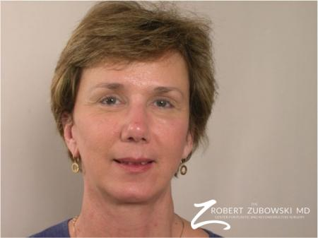 Brow Lift: Patient 2 - After Image 1