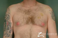 Gynecomastia: Patient 2 - Before Image