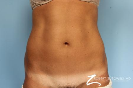 CoolSculpting®: Patient 5 - After Image