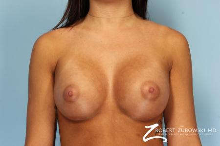 Breast Augmentation: Patient 34 - After Image 1