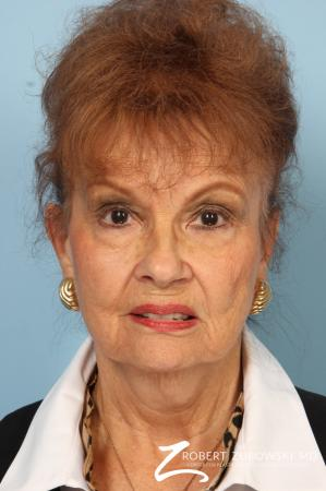 Facelift: Patient 24 - Before Image