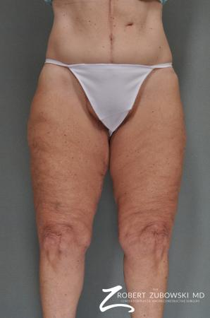 Thigh Lift: Patient 1 - After Image