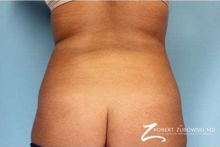 Liposuction: Patient 37 - Before Image