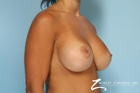 Breast Augmentation: Patient 41 - After Image 2