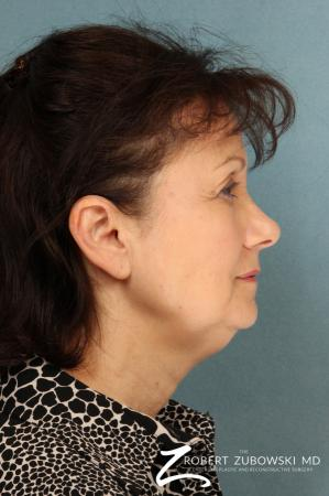 Blepharoplasty: Patient 25 - Before and After Image 2