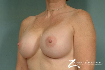 Breast Augmentation: Patient 22 - After Image 2