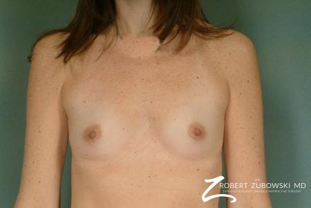 Breast Augmentation: Patient 27 - Before Image 1