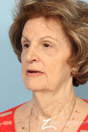 Blepharoplasty: Patient 36 - After Image 3