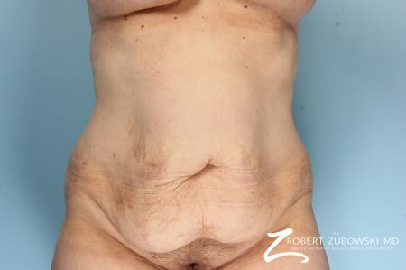 Body Lift: Patient 9 - Before Image