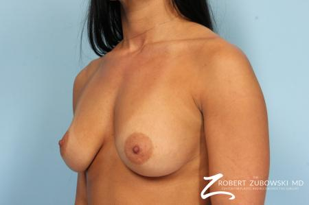 Breast Augmentation: Patient 41 - Before and After Image 3