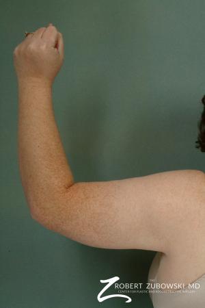 Arm Lift: Patient 3 - After Image 2