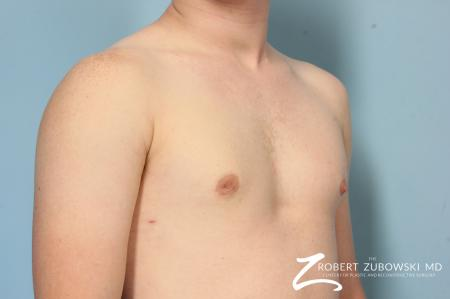 Gynecomastia: Patient 11 - After Image 2
