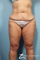 Body Lift: Patient 5 - Before Image