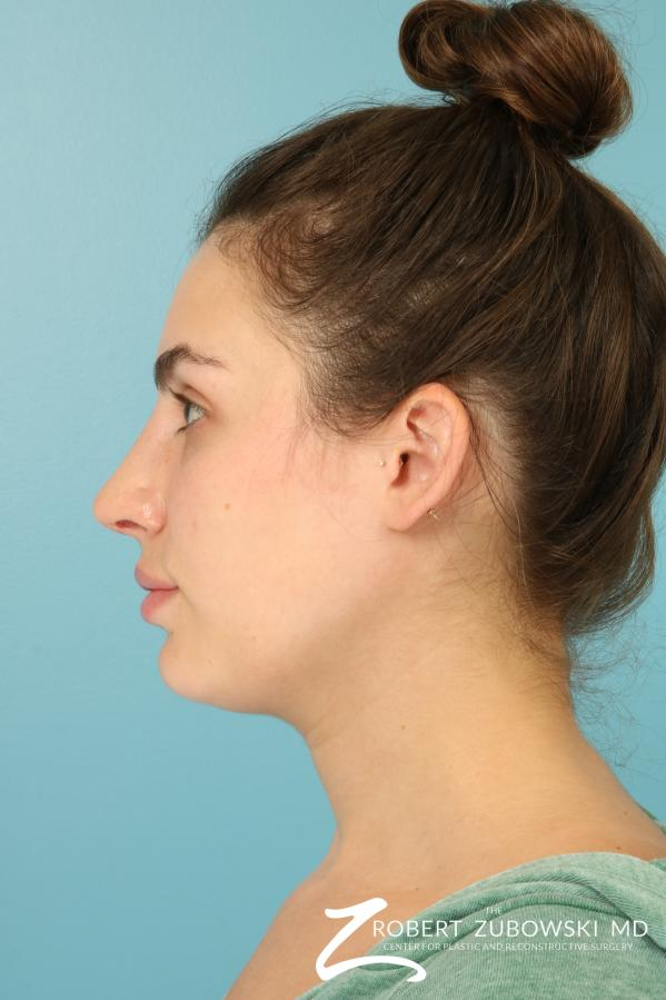 Rhinoplasty: Patient 26 - Before and After