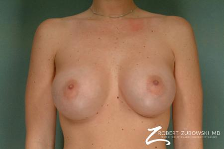 Breast Augmentation: Patient 29 - After Image 1