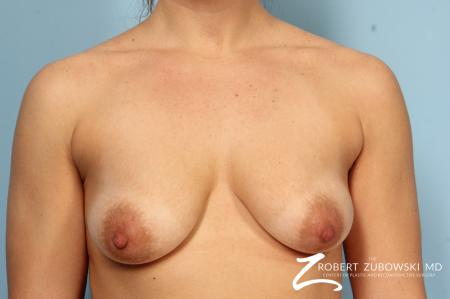Breast Augmentation With Lift: Patient 1 - Before Image 1