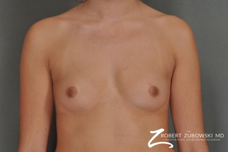 Breast Augmentation: Patient 15 - Before Image
