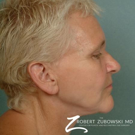 Facelift: Patient 14 - After Image 2