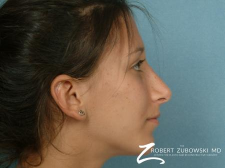 Rhinoplasty: Patient 8 - After Image 2