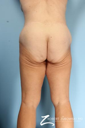 Thigh Lift: Patient 4 - Before and After Image 2