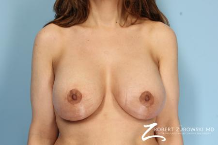 Breast Lift And Augmentation: Patient 6 - After Image