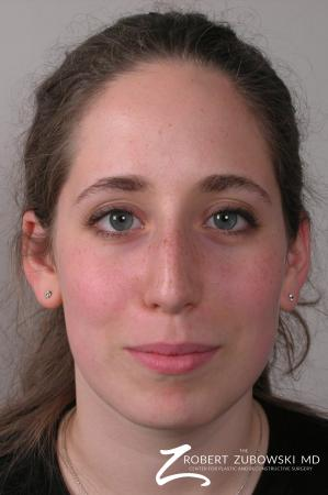 Rhinoplasty: Patient 7 - Before Image