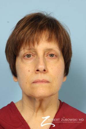 Neck Lift: Patient 1 - Before Image