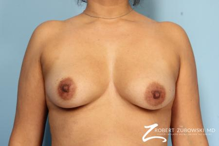 Breast Augmentation: Patient 33 - Before Image