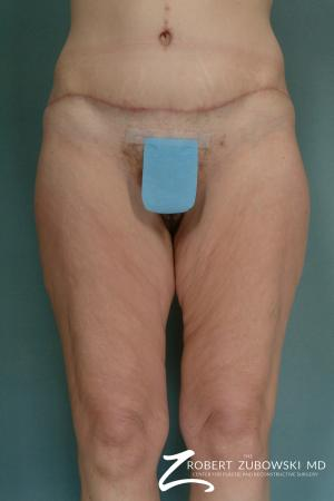 Body Lift: Patient 2 - After Image
