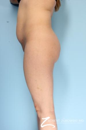 Butt Augmentation: Patient 2 - Before Image