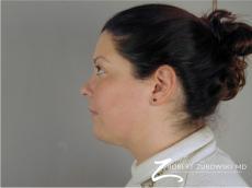 Liposuction: Patient 43 - After Image