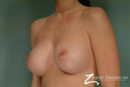 Breast Augmentation: Patient 29 - After Image 2