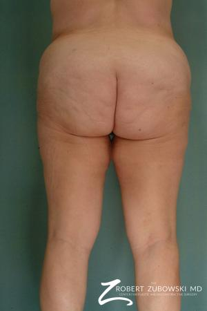 Thigh Lift: Patient 3 - Before and After Image 2
