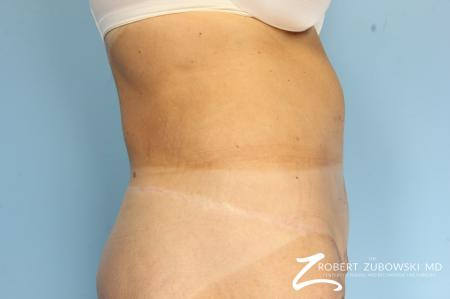 CoolSculpting®: Patient 2 - After Image 2