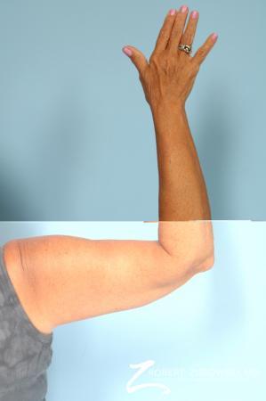 Arm Lift: Patient 5 - After Image 4