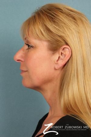Facelift: Patient 21 - Before Image 2
