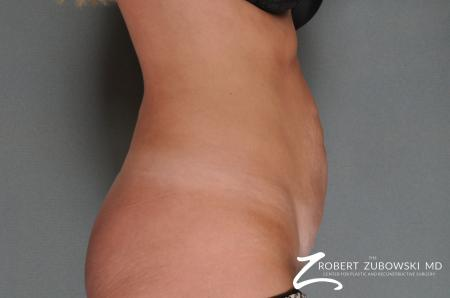 Tummy Tuck: Patient 10 - Before and After Image 2