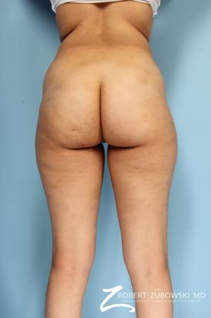 Butt Augmentation: Patient 3 - Before and After Image 2