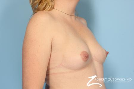 Breast Augmentation: Patient 10 - Before and After Image 2