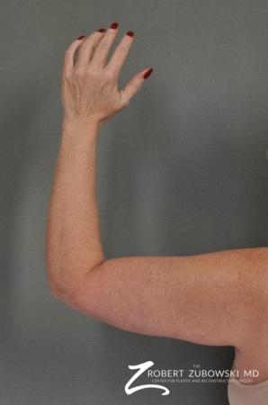 Arm Lift: Patient 1 - After Image 2