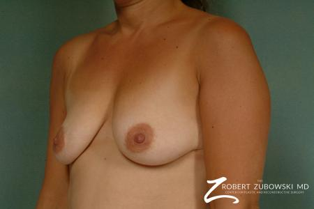 Breast Lift And Augmentation: Patient 16 - Before and After Image 2