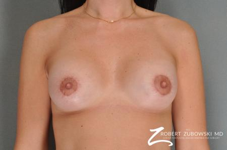 Breast Lift And Augmentation: Patient 5 - After Image