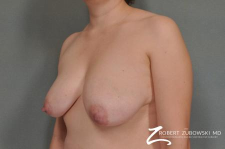 Breast Lift: Patient 12 - Before and After Image 2