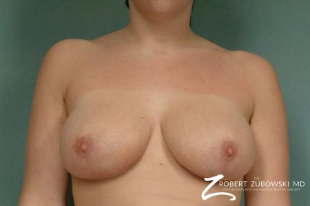 Breast Lift: Patient 7 - After Image