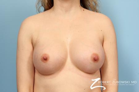 Breast Augmentation: Patient 6 - After Image