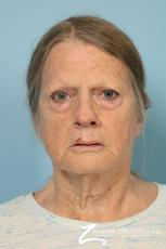 Blepharoplasty: Patient 38 - Before Image