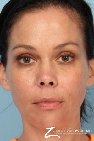 Fillers: Patient 2 - After Image