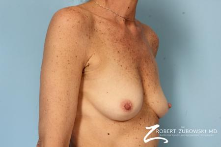 Breast Augmentation: Patient 39 - Before Image 2