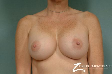 Breast Augmentation: Patient 22 - After Image 1