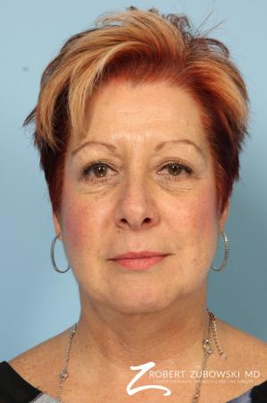 Blepharoplasty: Patient 13 - Before Image